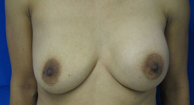 Before Breast Augmentation with Fat Grafting and Implant Replacement